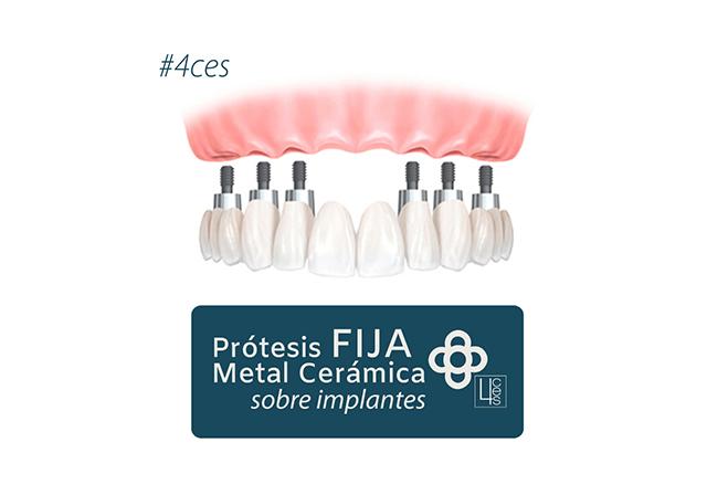 Prótesis Fija de Metal Cerámica sobre Implantes
