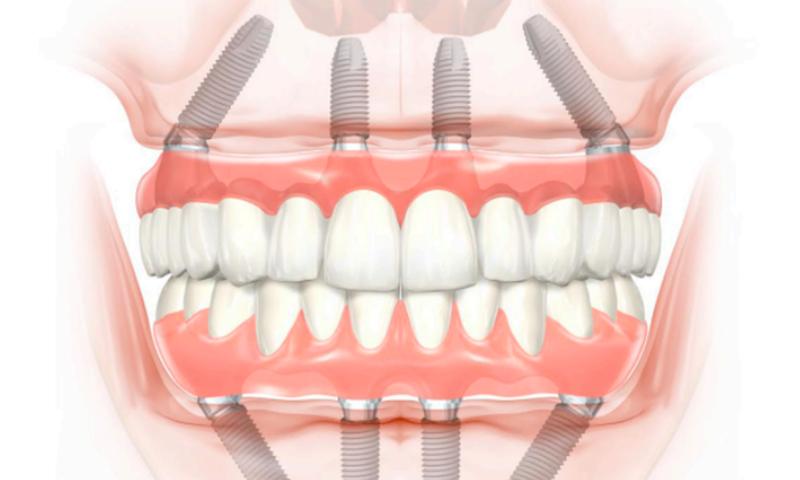 dientesfijosenundía_catroces