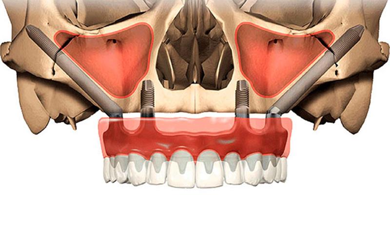 implantescigomaticos_catroces