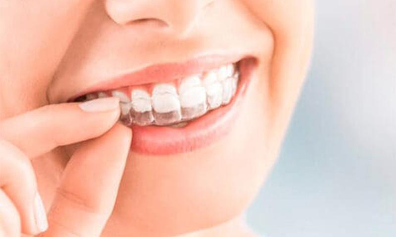 ortodonciainvisibleinvisalign2_catroces