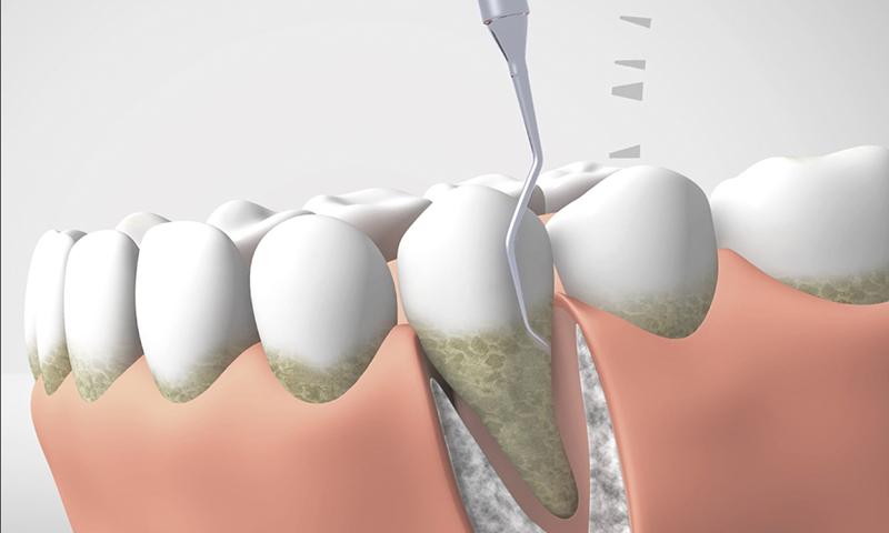 periodoncia3_catroces