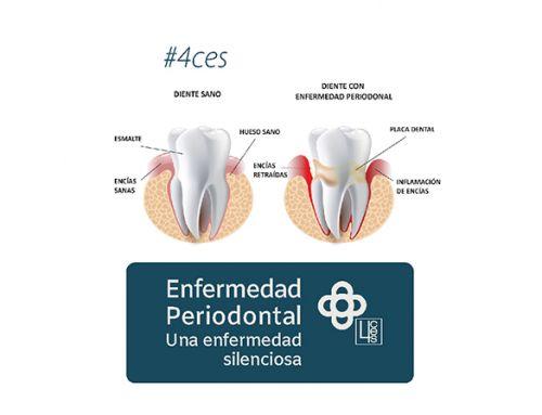 Enfermedad periodontal. Una enfermedad silenciosa